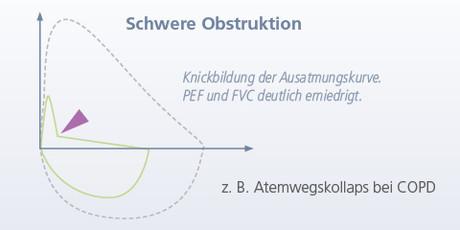 Schwere Obstruktion