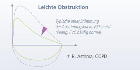 Leichte Obstruktion