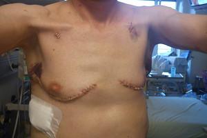 Two weeks after transplantation