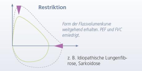 Restriktion