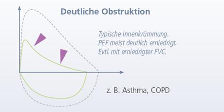 Deutliche Obstruktion