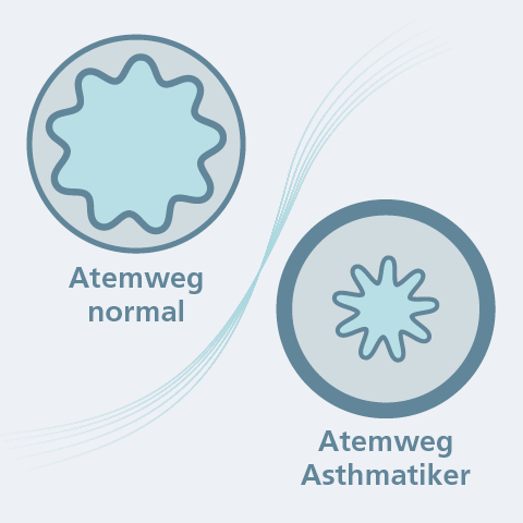 Was genau passiert bei Asthma?