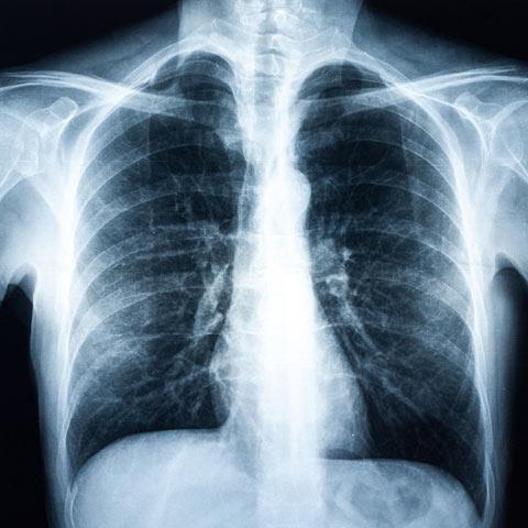 Entwicklung und möglicher Verlauf von COPD
