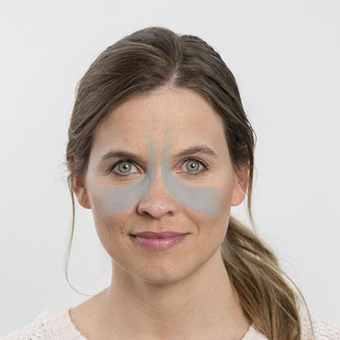 Sinusitis – wenn die Nase immer wieder verstopft
