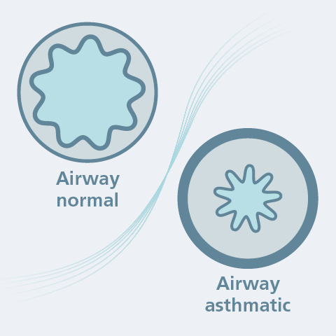 What exactly happens with asthma?