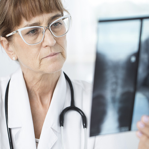 Bronchiectasis is a long-term condition affecting the airways